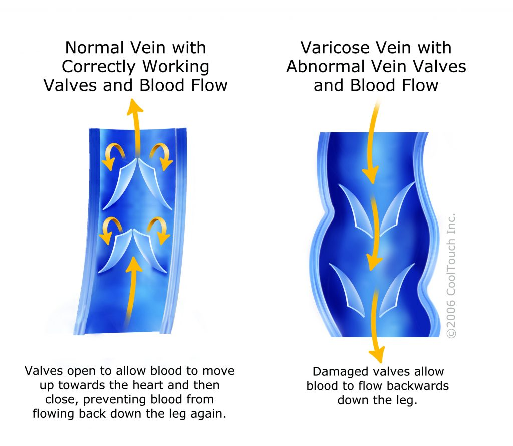 Vein Values Illustration