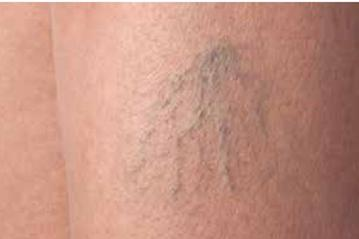 Sclerotherapy Treatment of Spider Veins